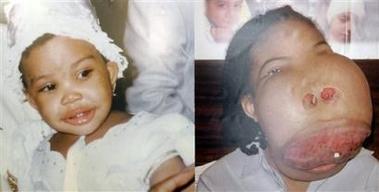 عکس وحشتناک از تومور16پاوندی در صورت یک دختر
