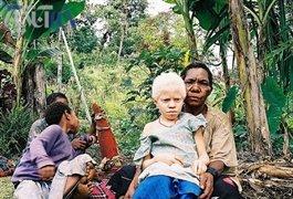 قاچاق وحشتناک در افریقای شرقی  عکس